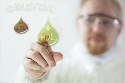 Cholesterol HDL