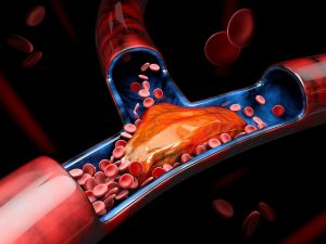 Trombofilia pakiet