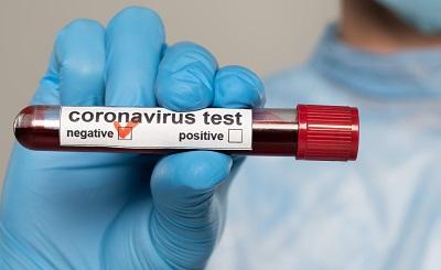 Koronawirus anty-SARS-CoV-2, IgG/IgM, test ilościowy/test półilościowy
