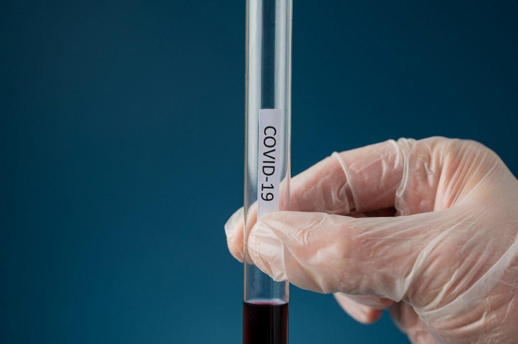 Koronawirus SARS-CoV-2 przeciwciała IgG ilościowo