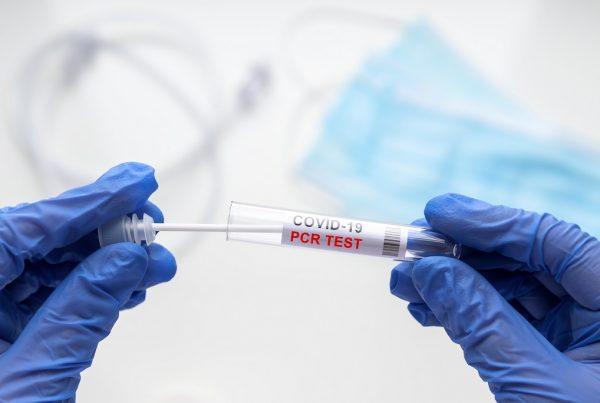Test genetyczny RT-PCR w diagnostyce koronawirusa